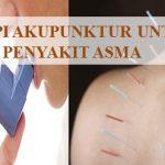 Terapi akupuntur untuk asma di Ciledug