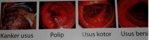 Cara Membuang Racun Dalam Tubuh dengan Herbal Alami