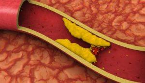 Cara Menurunkan Kolesterol Darah yang Aman dan Alami