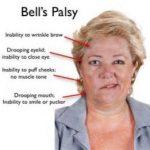 Penyebab dan cara mengatasi Bellspalsy atau lumpuh wajah