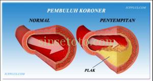 Obat Penyumbatan Pembuluh Darah Jantung yang Aman