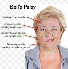 penyakit Bells spalsy