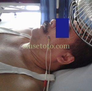 terapi bellspalsy denga akupuntur