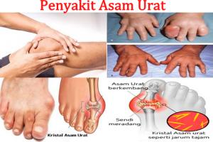 6 gejala sakit asam urat dan cara mengobatinya di Jakarta