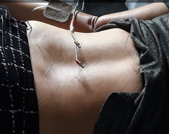 Cara Mengobati Asam Lambung dengan Akupuntur dan Herbal di Tangerang