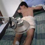 Cara Mengobati Impoten Dengan Akupuntur dan Herbal di Tangerang