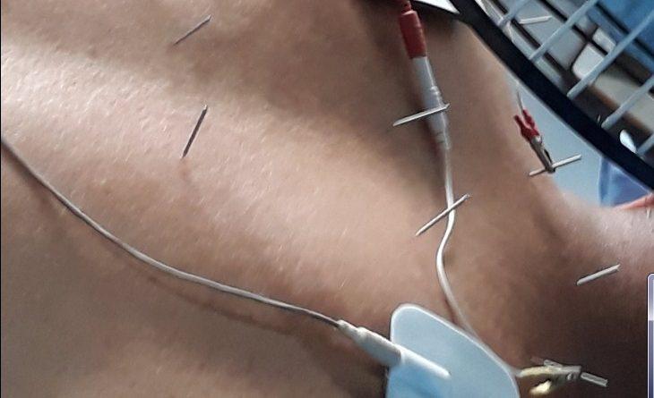 Cara Mengobati Sakit Pinggang dengan Akupuntur dan Herbal di Tangerang