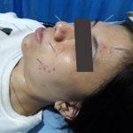 Cara Mengobati Stroke dengan Akupuntur dan Herbal di Tangerang