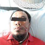 Cara Mengobati Vertigo Dengan Akupuntur dan Herbal di Jakarta