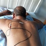 Cara Mengobati Vertigo Dengan Akupuntur dan Herbal di Tangerang