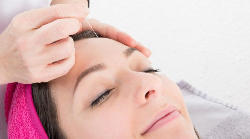 Klinik Akupuntur Kecantikan di Dekat Srengseng Jakarta Barat 081908284999
