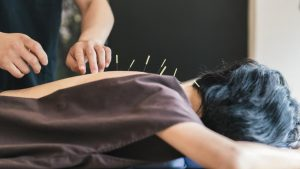 alternatif akupuntur di derah Pondok Aren 081908284999