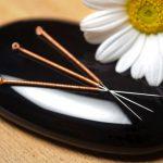 Klinik Akupuntur Kecantikan Di Dekat Alam Sutra 081908284999