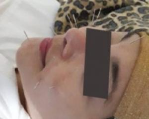 terapi akupuntur wajah
