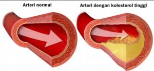6 gejala sakit kolesterol dan cara mengobatinya dengan alami