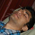 Cara Mengobati Asma dengan Terapi Akupuntur