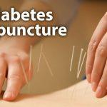 Diabetes Awal dapat Diatasi Melalui Terapi Akupuntur