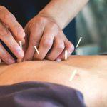 Miom Rahim dapat Disembuhkan dengan Akupuntur