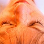 Polip Hidung Tanpa Operasi dengan Akupuntur