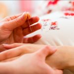 Terapi Tusuk Jarum untuk Migrain