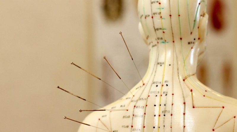Manfaat Akupuntur Tusuk Jarum