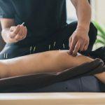 Tempat Terapi Tusuk Jarum Di Dekat Jakarta Selatan