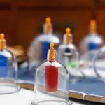 Manfaat Bekam dan Efek Sampingnya Bagi Kesehatan