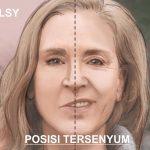 Pantangan Makanan Penderita Mulut Miring/ Bell's Palsy