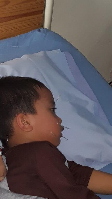 Akupuntur Untuk Anak 2