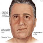 Bagaimana caramengatasi  wajah miring  dengan cepat di Larangan Selatan