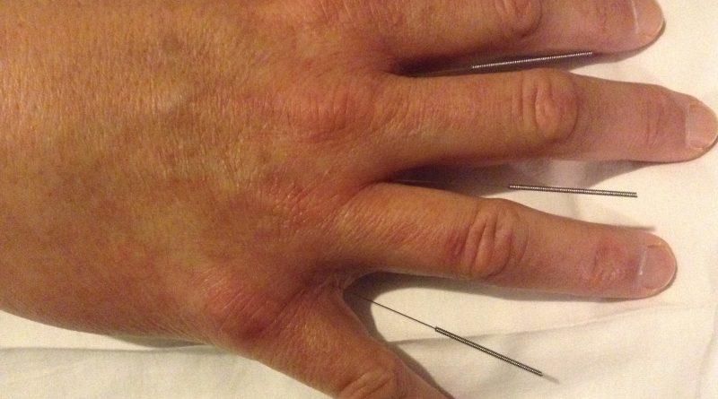 Cara Mengobati Stroke Dengan Terapi Tusuk Jarum di Bintaro